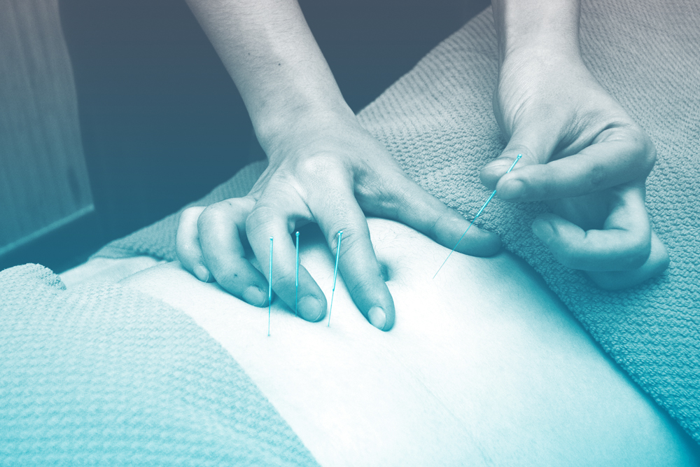 Accupuncture may aid addiction recovery.